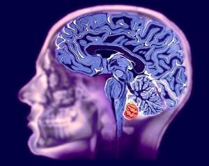 МРТ-мозга